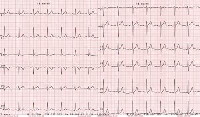 ECG, Holter, Remler