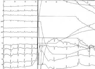 L'application du choc électrique externe (DC) permet d'arrêter l'arythmie et de restaurer le rythme normal (partie droite de la figure)